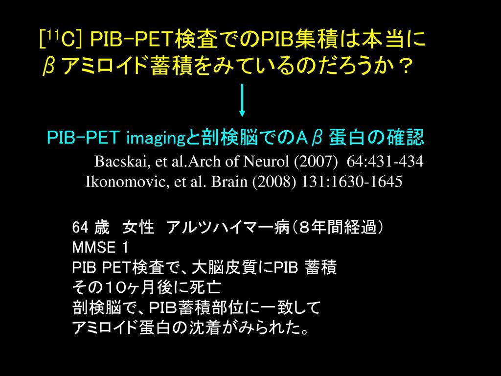[11C] PIB-PET検査でのPIB集積は本当にβアミロイド蓄積をみているのだろうか?